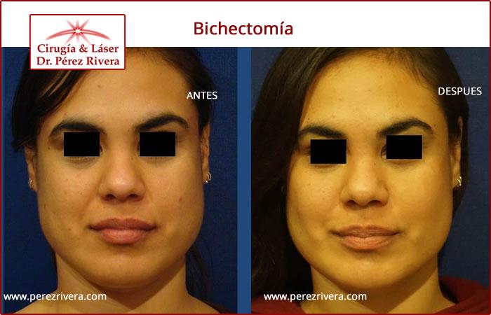 Bichectomía | Cirugía reductiva de mejillas | Cómo bajar los