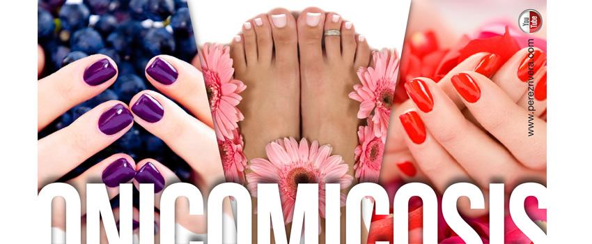 El hongo de la uña del pie que se distribuye en la piel del pie